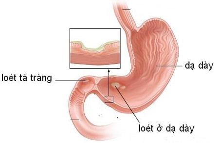 Những lưu ý không thể bỏ qua về viêm loét dạ dày tá tràng