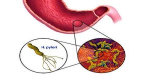 Cách phòng tránh lây nhiễm khuẩn HP