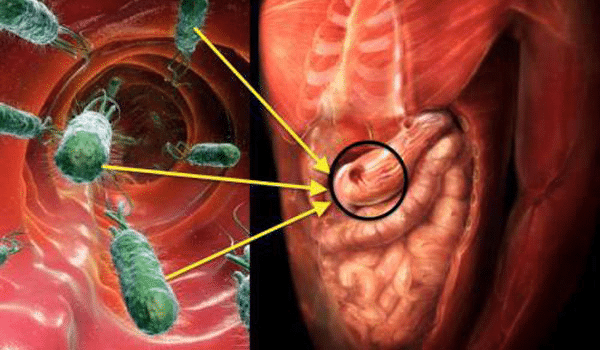 Cảnh báo những biểu hiện của viêm loét dạ dày do nhiễm khuẩn HP mà bạn cần chú ý