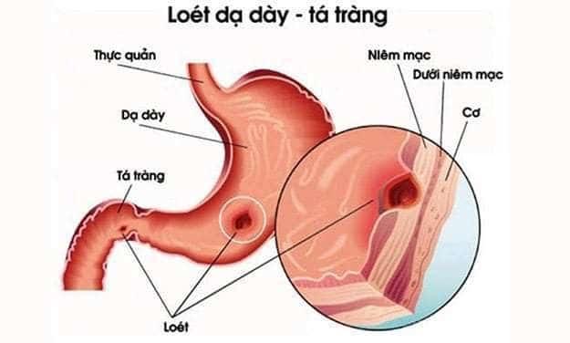 loét dạ dày tá tràng 1