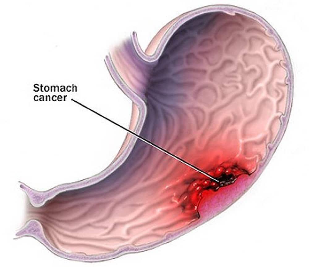 2 dấu hiệu viêm loét dạ dày đang tiến triển thành ung thư!