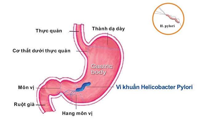 Vi khuẩn HP trong dạ dày có lây không? 2