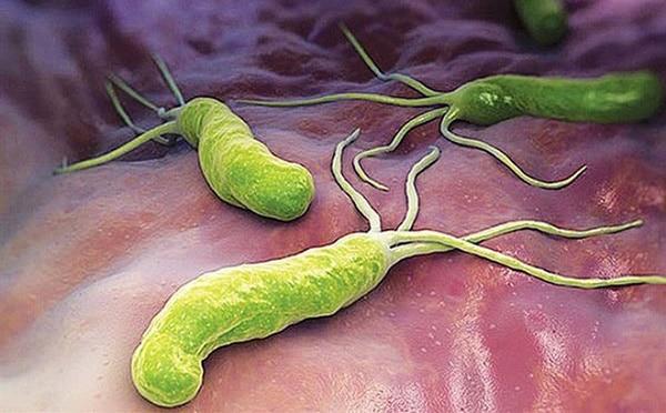 Nguy hiểm tiềm tàng từ vi khuẩn HP dạ dày 1