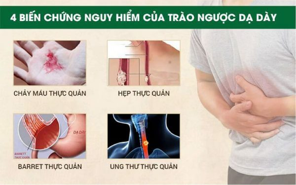 4 biến chứng nguy hiểm của bệnh trào ngược dạ dày thực quản