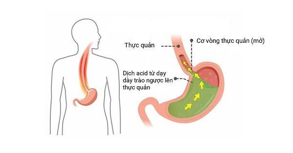 Bệnh trào ngược dạ dày có chữa được không?