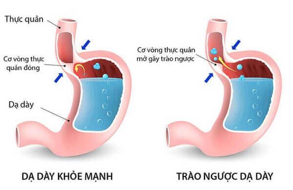 Hình ảnh cho thấy sự khác nhau giữa dạ dày khỏe mạnh và dạ dày bị trào ngược