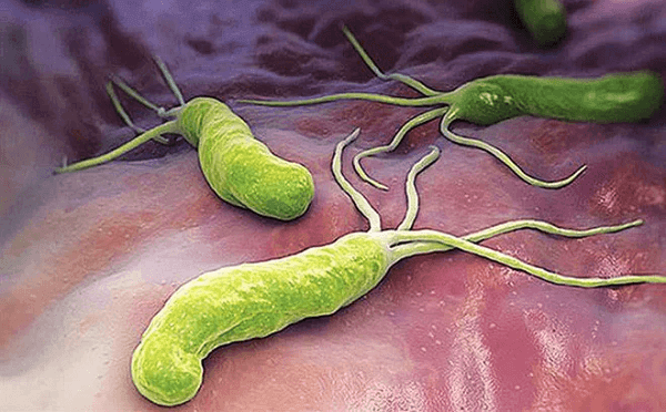 """Vi khuẩn HP là """"sát thủ"""" khiến tăng tiết acid dịch vị và gây trào ngược dạ dày"""