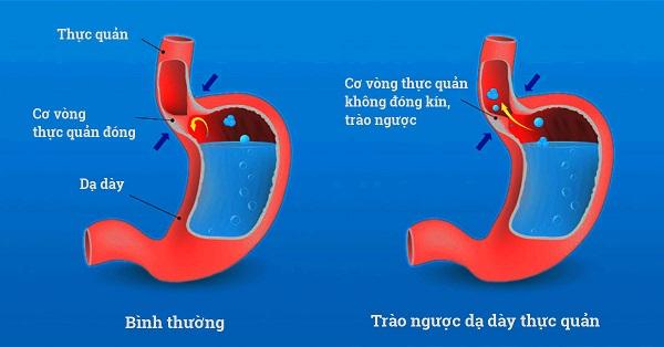 Trào ngược dạ dày là gì